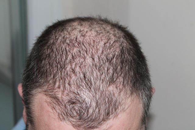 Read more about the article טכנולוגיות מיוחדות להצמחת שיער: כל מה שצריך לדעת